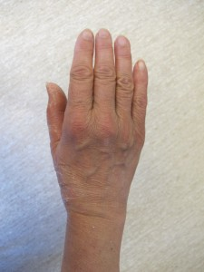 right hand after surgery