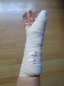 temporary splint