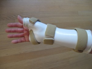 palm side of my custom splint