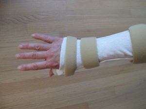 back of my hand wearing custom made splint