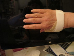 back of my hand with mini splint