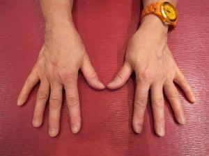 open view of my hands