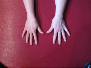 hand comparison pre-surgery