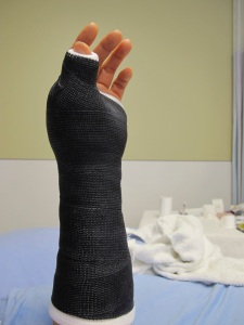 finished cast
