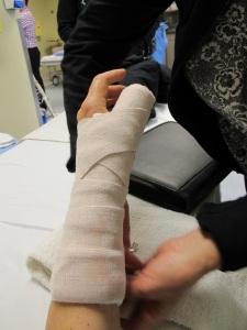 my temporary splint