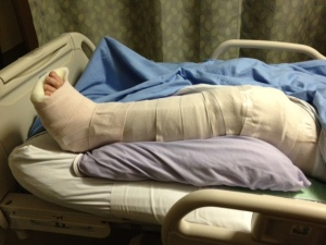 broken leg before surgery