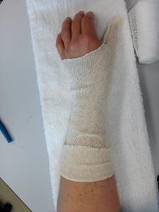 cotton sleeve for under splint