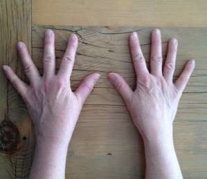 hands after surgery